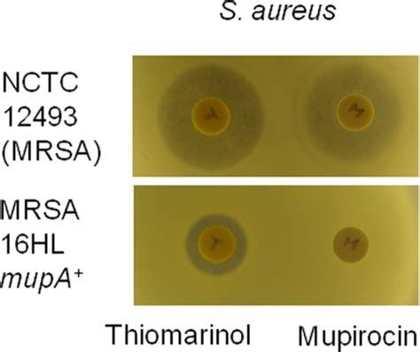 staphylococcus aureus MRSA - DigitalCommonsEMU
